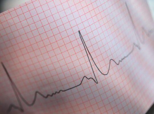 Lettura ed interpretazione dell' ECG